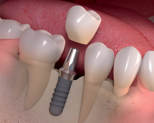 lake-forest-ca-single-tooth-implant-replacement